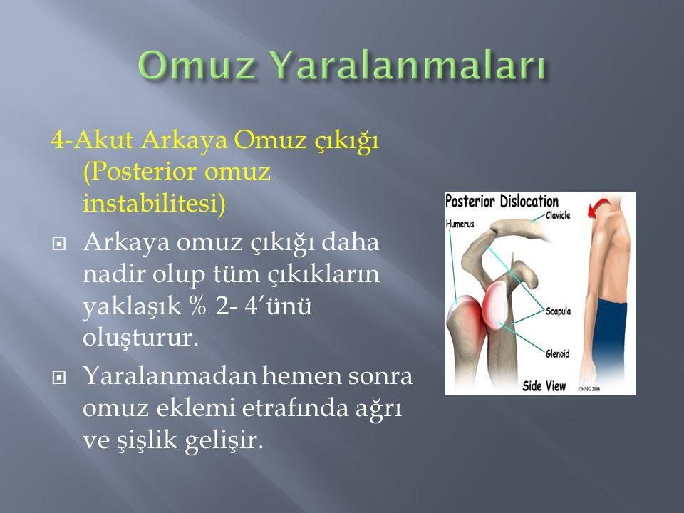 4-Akut Arkaya Omuz çıkığı (Posterior omuz instabilitesi)  Arkaya omuz çıkığı daha nadir olup tüm çıkıkların yaklaşık % 2- 4'ünü oluşturur.  Yaralanm