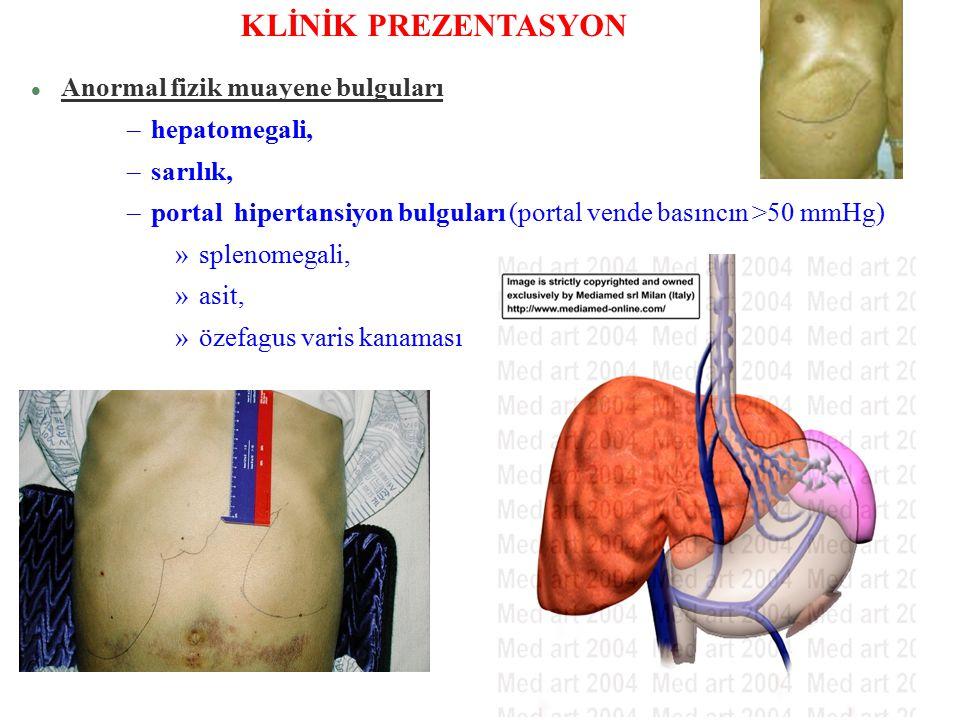 l Anormal fizik muayene bulguları –hepatomegali, –sarılık, –portal hipertansiyon bulguları (portal vende basıncın >50 mmHg) »splenomegali, »asit, »öze