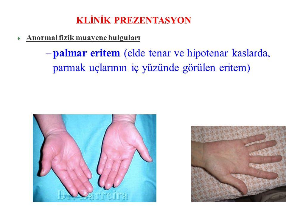 l Anormal fizik muayene bulguları –palmar eritem (elde tenar ve hipotenar kaslarda, parmak uçlarının iç yüzünde görülen eritem) KLİNİK PREZENTASYON