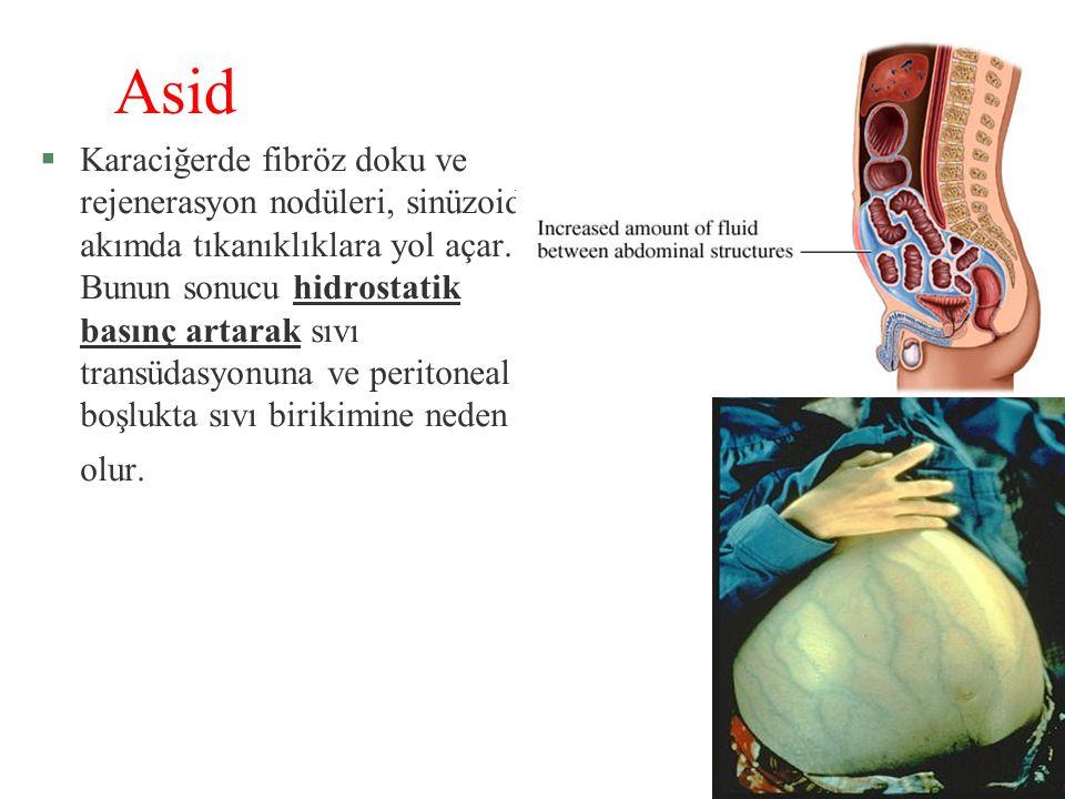 Asid §Karaciğerde fibröz doku ve rejenerasyon nodüleri, sinüzoidal akımda tıkanıklıklara yol açar. Bunun sonucu hidrostatik basınç artarak sıvı transü