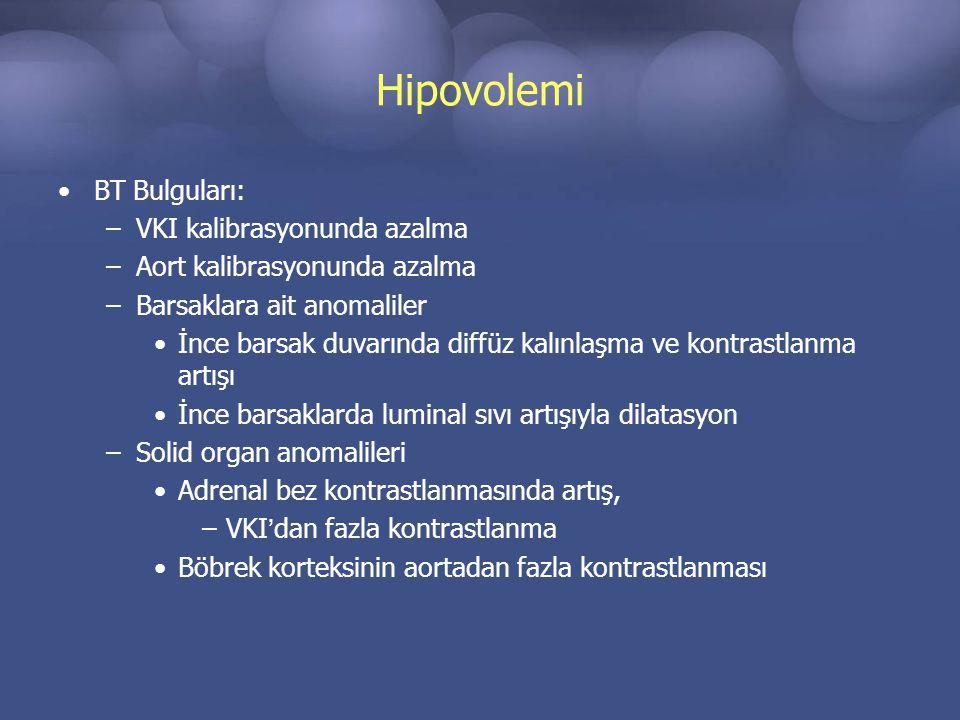 Hipovolemi BT Bulguları: –VKI kalibrasyonunda azalma –Aort kalibrasyonunda azalma –Barsaklara ait anomaliler İnce barsak duvarında diffüz kalınlaşma ve kontrastlanma artışı İnce barsaklarda luminal sıvı artışıyla dilatasyon –Solid organ anomalileri Adrenal bez kontrastlanmasında artış, –VKI'dan fazla kontrastlanma Böbrek korteksinin aortadan fazla kontrastlanması