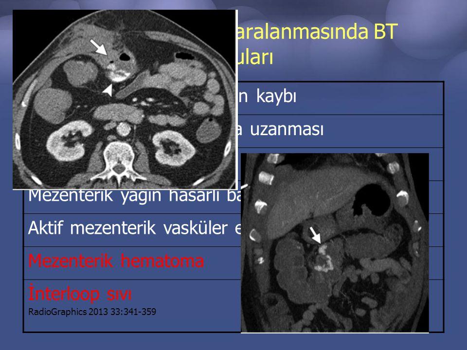 Penetran barsak yaralanmasında BT bulguları Barsak duvarı devamlılığının kaybı Yaralanmış tıraktın barsağa uzanması Oral veya rektal kontrastın sızıntısı Mezenterik yağın hasarlı barsak etrafını sarması Aktif mezenterik vasküler extravazason Mezenterik hematoma İnterloop sıvı RadioGraphics 2013 33:341-359