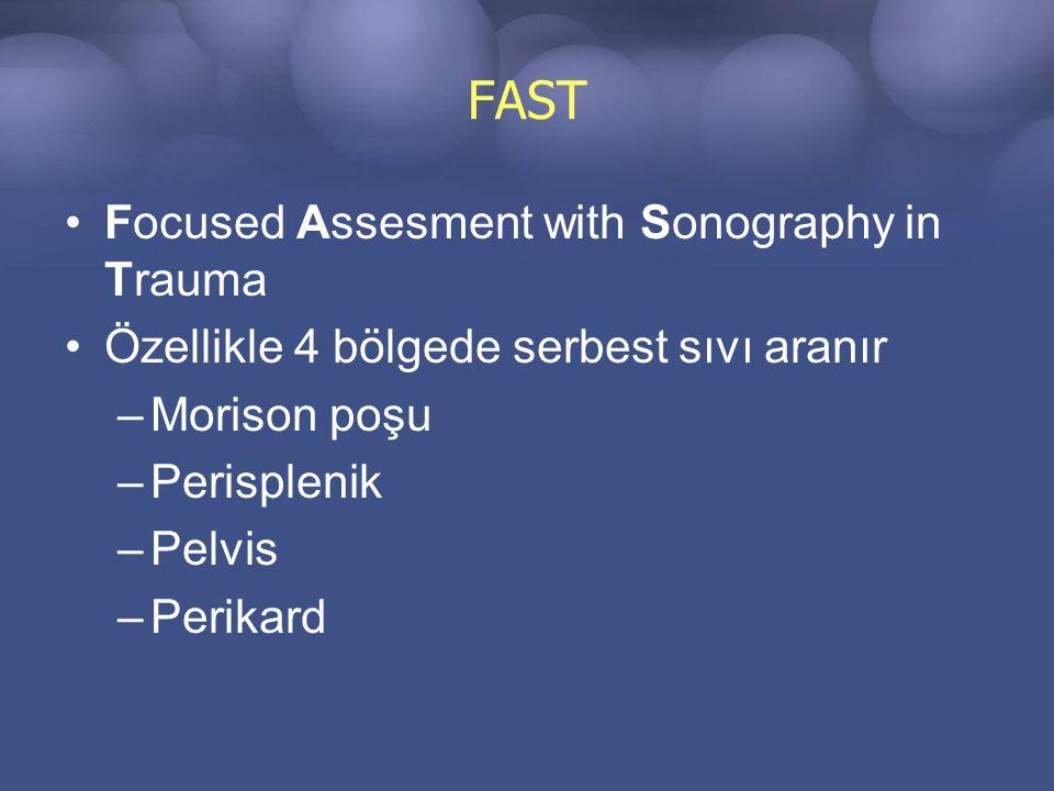 FAST Focused Assesment with Sonography in Trauma Özellikle 4 bölgede serbest sıvı aranır –Morison poşu –Perisplenik –Pelvis –Perikard