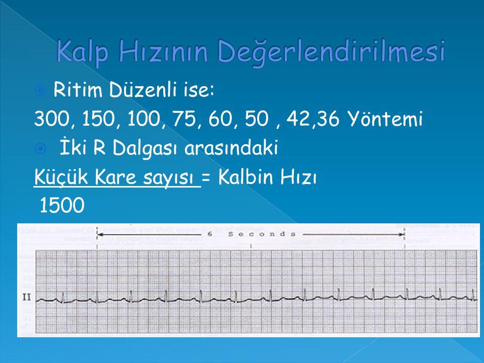  Ritim Düzenli ise: 300, 150, 100, 75, 60, 50, 42,36 Yöntemi  İki R Dalgası arasındaki Küçük Kare sayısı = Kalbin Hızı 1500
