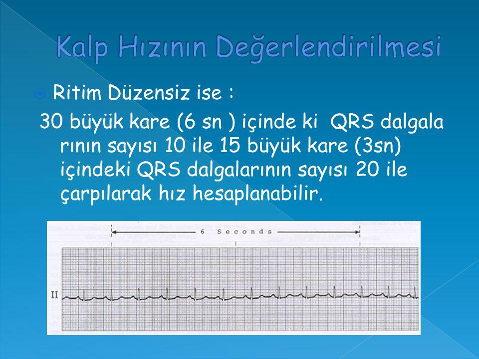  Ritim Düzensiz ise : 30 büyük kare (6 sn ) içinde ki QRS dalgala rının sayısı 10 ile 15 büyük kare (3sn) içindeki QRS dalgalarının sayısı 20 ile çarpılarak hız hesaplanabilir.