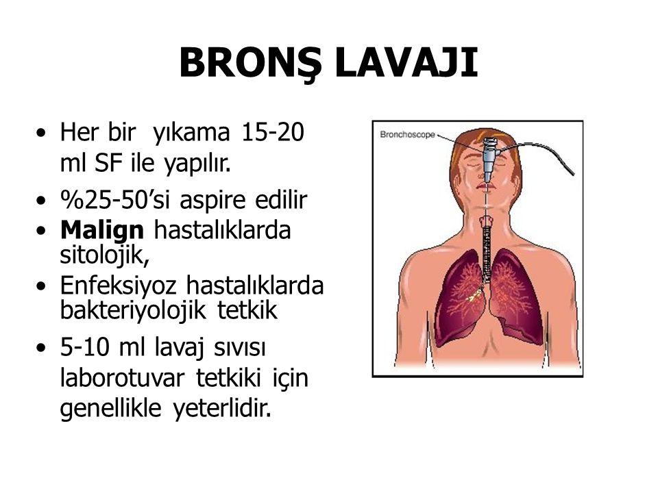 BRONŞ LAVAJI Her bir yıkama 15-20 ml SF ile yapılır. %25-50'si aspire edilir Malign hastalıklarda sitolojik, Enfeksiyoz hastalıklarda bakteriyolojik t
