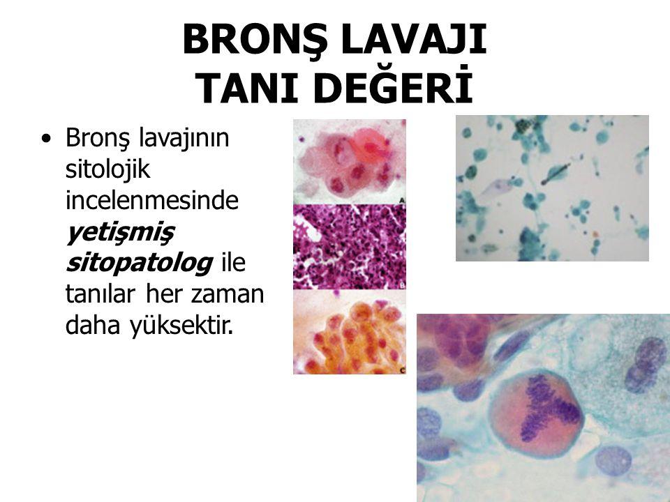 BRONŞ LAVAJI TANI DEĞERİ Bronş lavajının sitolojik incelenmesinde yetişmiş sitopatolog ile tanılar her zaman daha yüksektir.