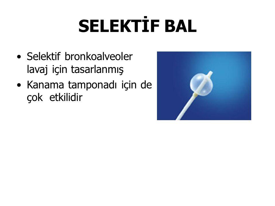 SELEKTİF BAL Selektif bronkoalveoler lavaj için tasarlanmış Kanama tamponadı için de çok etkilidir