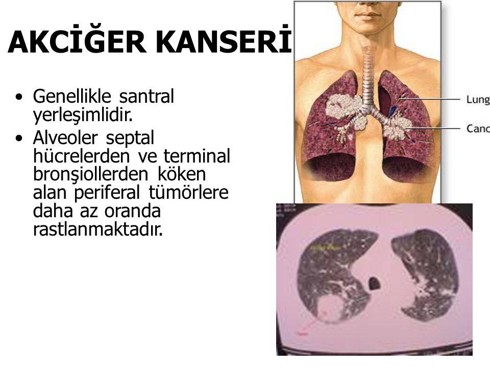 BRONKOSKOPİ Akciğer kanserinde hava yollarının incelenmesinde en sık kullanılan tanısal invazif yöntemdir.