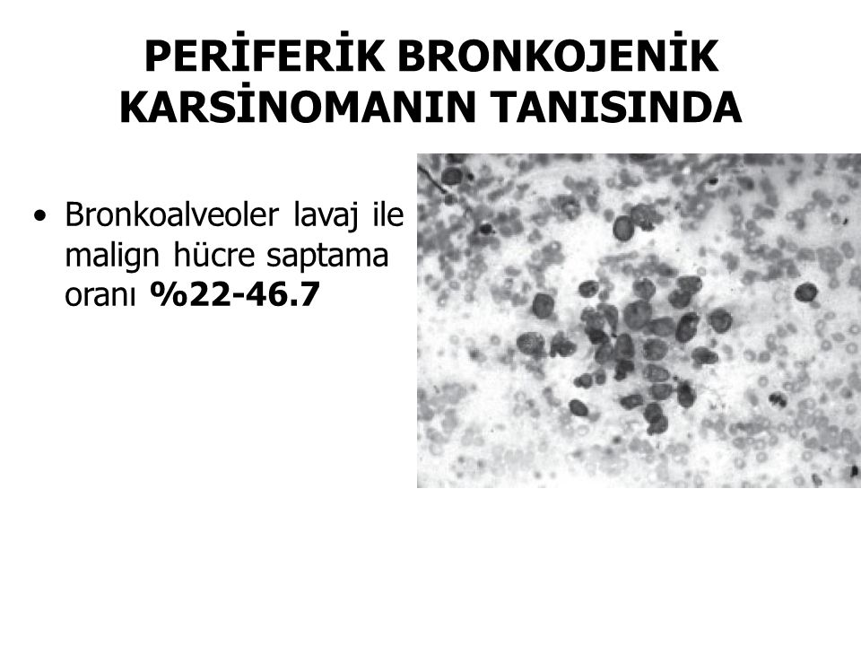 PERİFERİK BRONKOJENİK KARSİNOMANIN TANISINDA Bronkoalveoler lavaj ile malign hücre saptama oranı %22-46.7