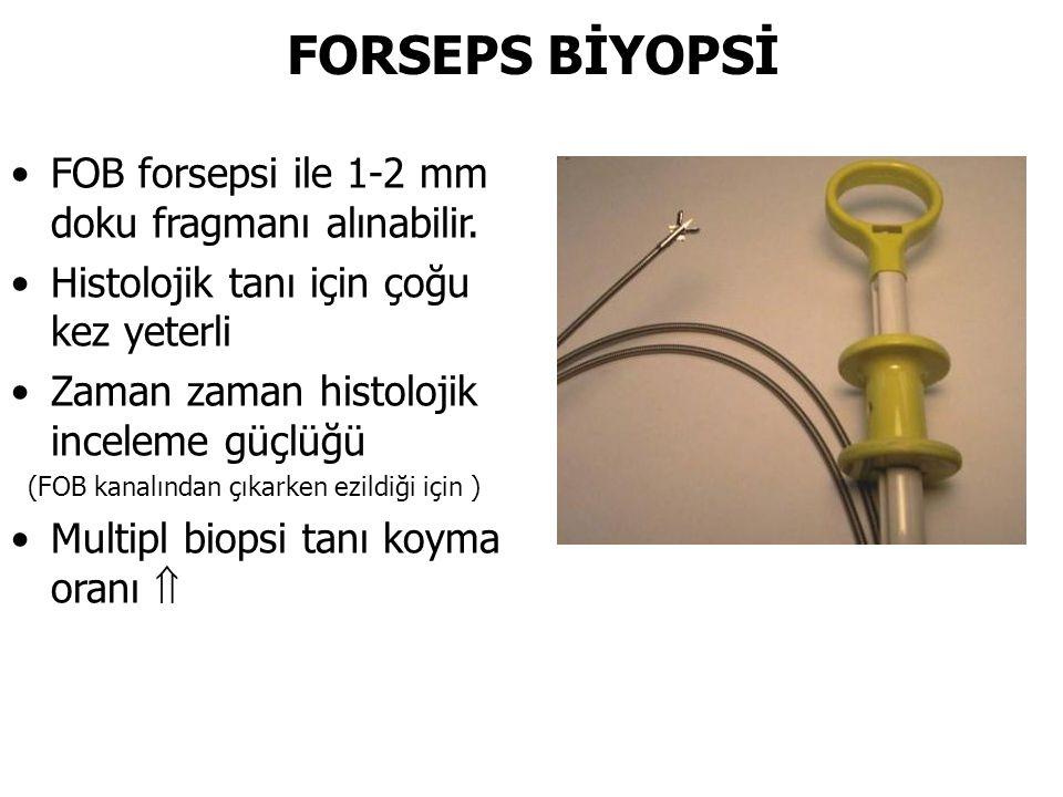 FORSEPS BİYOPSİ FOB forsepsi ile 1-2 mm doku fragmanı alınabilir. Histolojik tanı için çoğu kez yeterli Zaman zaman histolojik inceleme güçlüğü (FOB k