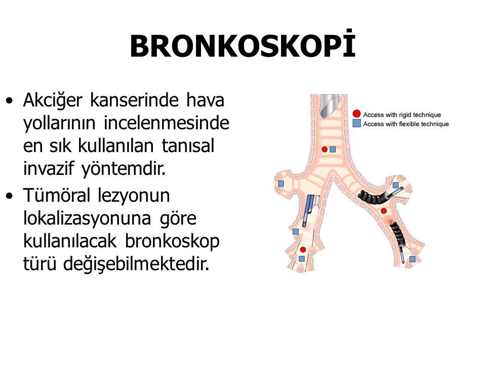 BRONKOSKOPİ Akciğer kanserinde hava yollarının incelenmesinde en sık kullanılan tanısal invazif yöntemdir. Tümöral lezyonun lokalizasyonuna göre kulla