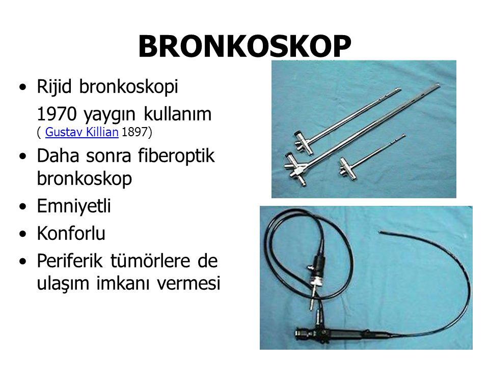 Rijid bronkoskopi 1970 yaygın kullanım ( Gustav Killian 1897)Gustav Killian Daha sonra fiberoptik bronkoskop Emniyetli Konforlu Periferik tümörlere de