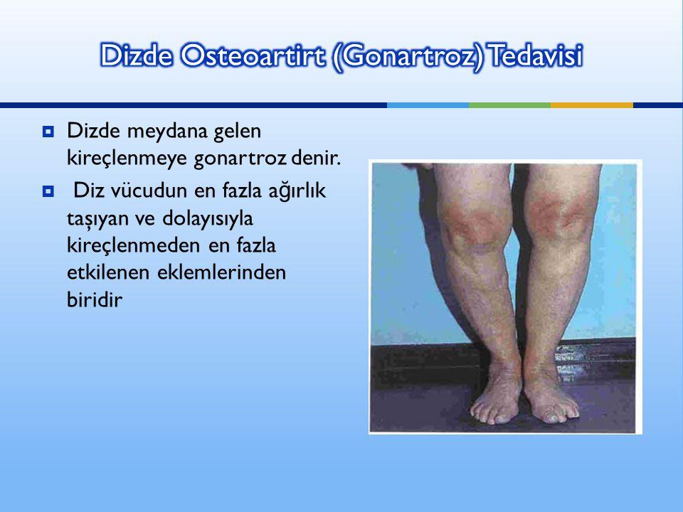  Dizde meydana gelen kireçlenmeye gonartroz denir.  Diz vücudun en fazla a ğ ırlık taşıyan ve dolayısıyla kireçlenmeden en fazla etkilenen eklemleri