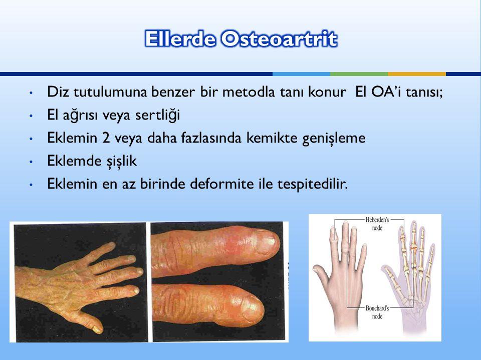 Diz tutulumuna benzer bir metodla tanı konur El OA'i tanısı; El a ğ rısı veya sertli ğ i Eklemin 2 veya daha fazlasında kemikte genişleme Eklemde şişl