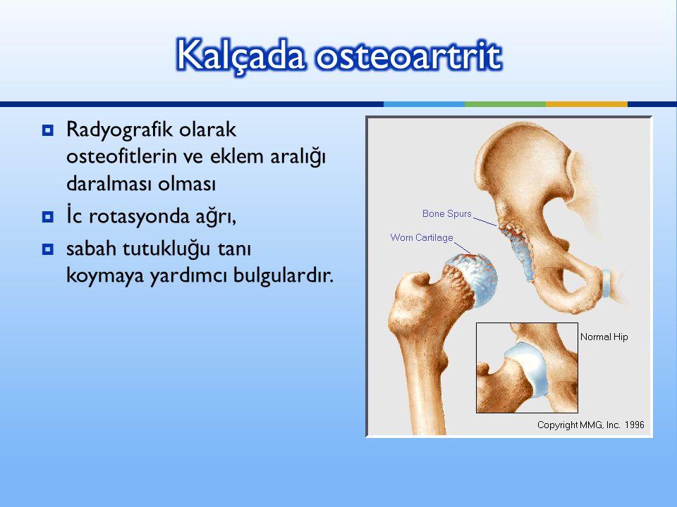  Radyografik olarak osteofitlerin ve eklem aralı ğ ı daralması olması  İ c rotasyonda a ğ rı,  sabah tutuklu ğ u tanı koymaya yardımcı bulgulardır.