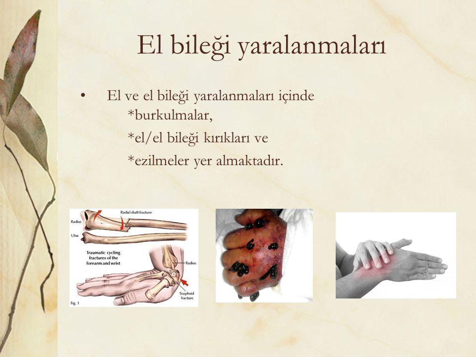 El bileği yaralanmaları El ve el bileği yaralanmaları içinde *burkulmalar, *el/el bileği kırıkları ve *ezilmeler yer almaktadır.