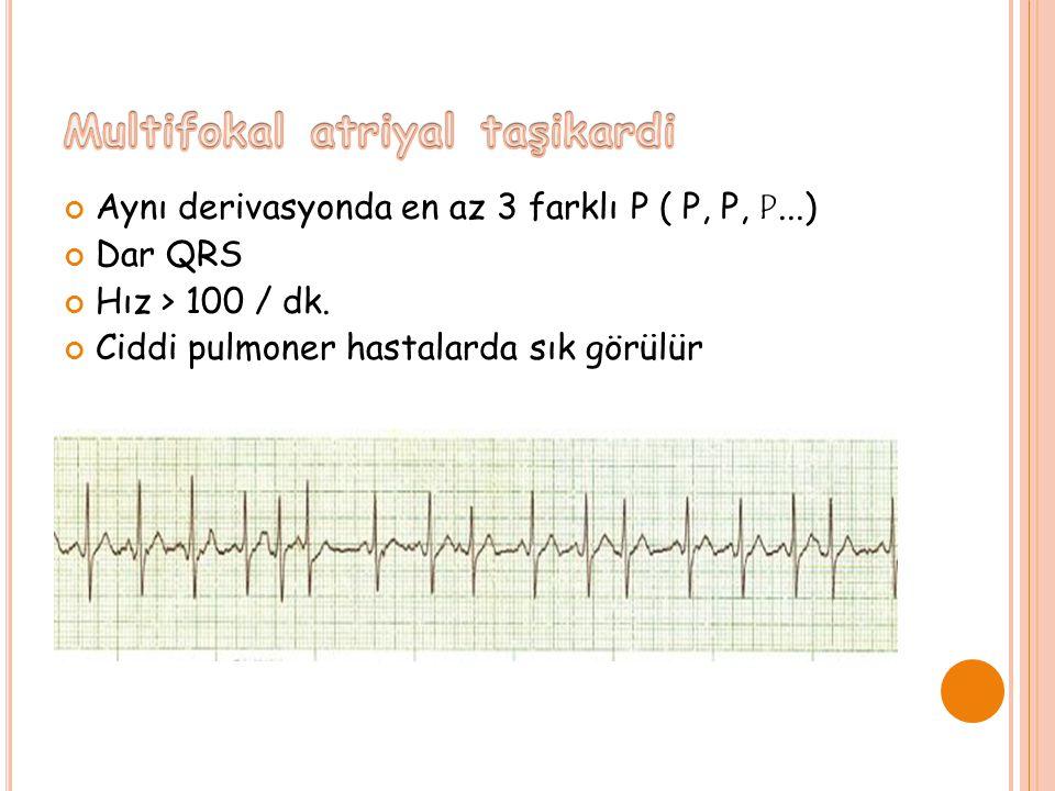 Aynı derivasyonda en az 3 farklı P ( P, P, P...) Dar QRS Hız > 100 / dk.
