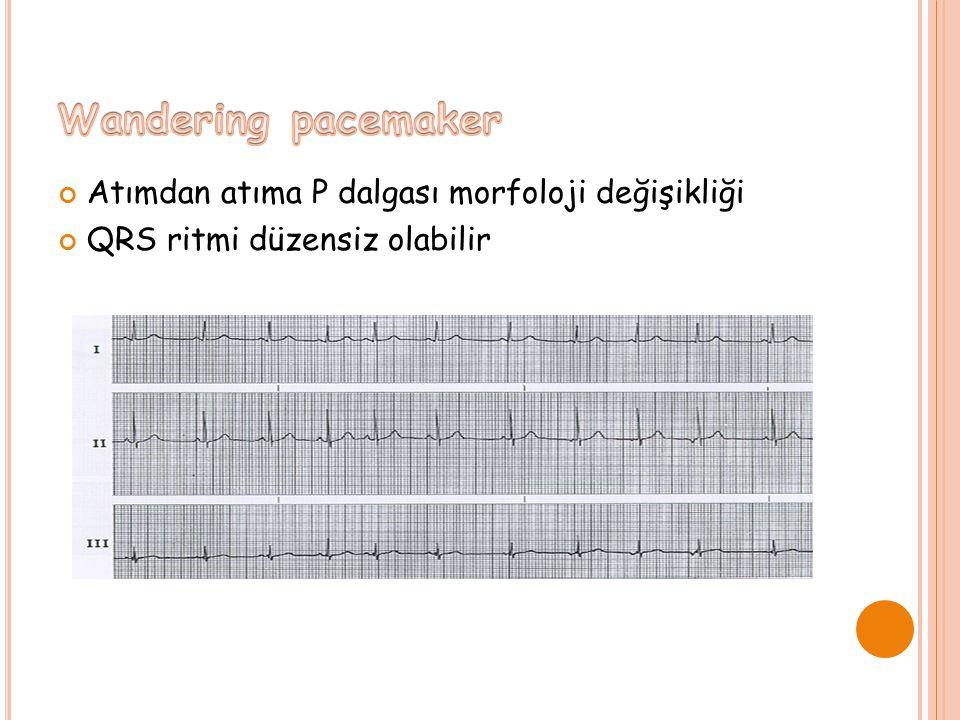 Atımdan atıma P dalgası morfoloji değişikliği QRS ritmi düzensiz olabilir