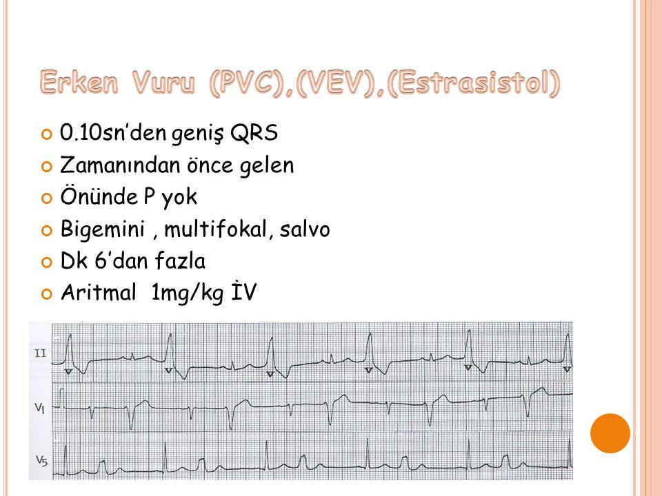 0.10sn'den geniş QRS Zamanından önce gelen Önünde P yok Bigemini, multifokal, salvo Dk 6'dan fazla Aritmal 1mg/kg İV