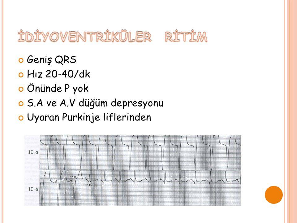 Geniş QRS Hız 20-40/dk Önünde P yok S.A ve A.V düğüm depresyonu Uyaran Purkinje liflerinden