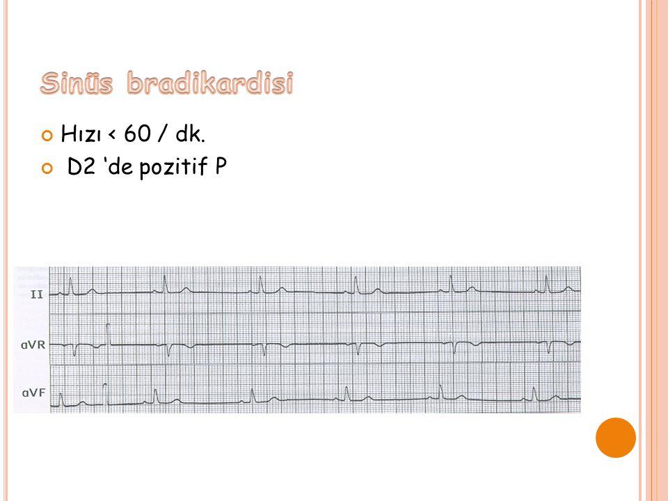 Hızı < 60 / dk. D2 'de pozitif P