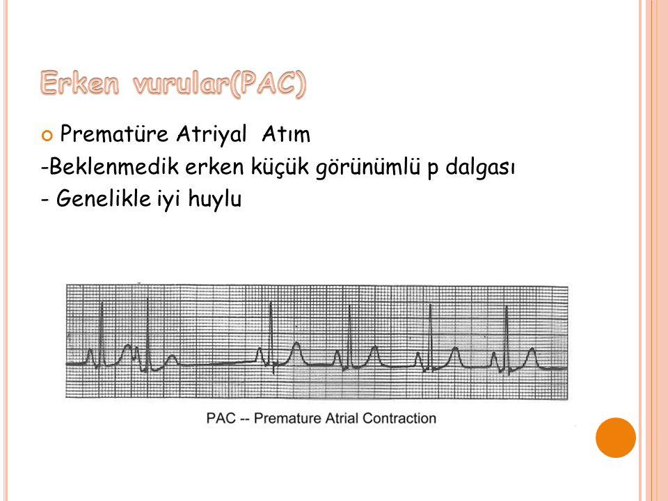 Prematüre Atriyal Atım -Beklenmedik erken küçük görünümlü p dalgası - Genelikle iyi huylu