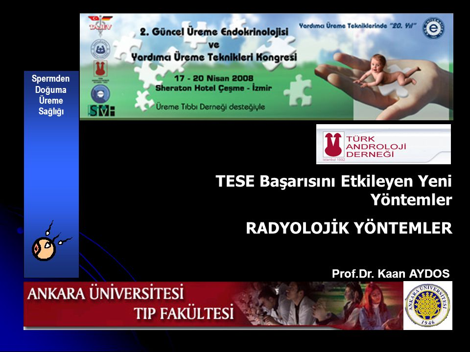 Tissue perfusion-controlled guided biopsies are essential for the outcome of testicular sperm extraction Fertil Steril 87; 2007 PERFÜZYON ARTIŞI NORMAL SPERM SAYISI