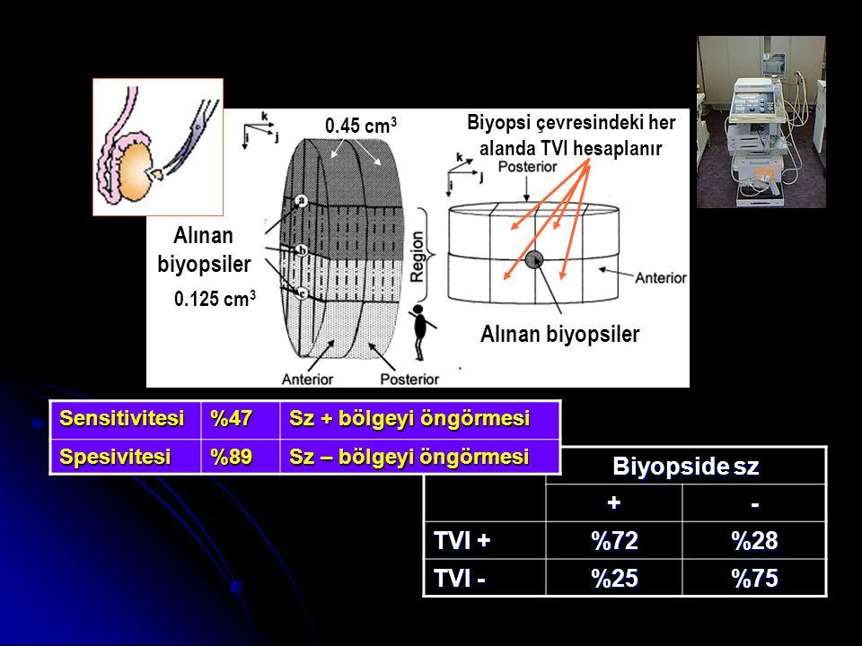 Alınan biyopsiler Biyopsi çevresindeki her alanda TVI hesaplanır 0.125 cm 3 0.45 cm 3 Biyopside sz +- TVI + %72%28 TVI - %25%75 Sensitivitesi%47 Sz + bölgeyi öngörmesi Spesivitesi%89 Sz – bölgeyi öngörmesi