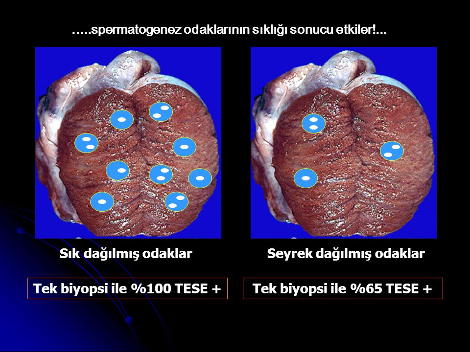 Sık dağılmış odaklarSeyrek dağılmış odaklar Tek biyopsi ile %100 TESE +Tek biyopsi ile %65 TESE +.....spermatogenez odaklarının sıklığı sonucu etkiler!...