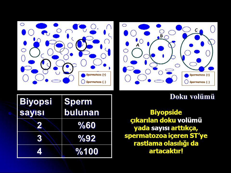 FNA haritalama & Hücre bulma NOA %47 (+) %95 (+) FNA haritalama yöntemine göre TESE Turek PJ.