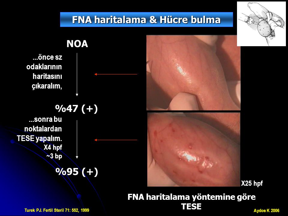 GC SCO spermatozoa Lewin.Hum Reprod 14: 1785, 1999 Meng, Turek.