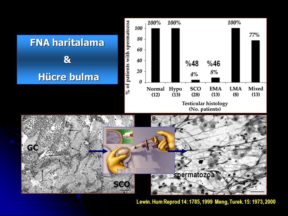 GC SCO spermatozoa Lewin. Hum Reprod 14: 1785, 1999 Meng, Turek.