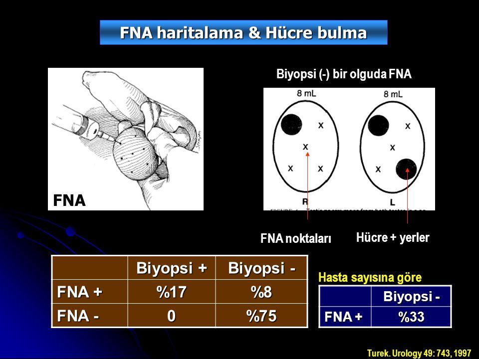 FNA FNA noktaları Hücre + yerler Biyopsi (-) bir olguda FNA Biyopsi + Biyopsi - FNA + %17%8 FNA - 0%75 FNA haritalama & Hücre bulma Biyopsi - FNA + %33 Hasta sayısına göre Turek.