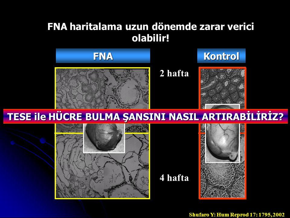 FNAKontrol FNA haritalama uzun dönemde zarar verici olabilir.