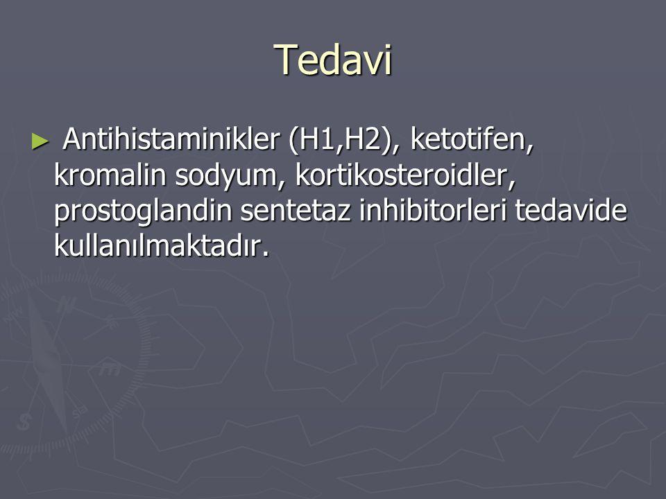 Tedavi ► Antihistaminikler (H1,H2), ketotifen, kromalin sodyum, kortikosteroidler, prostoglandin sentetaz inhibitorleri tedavide kullanılmaktadır.
