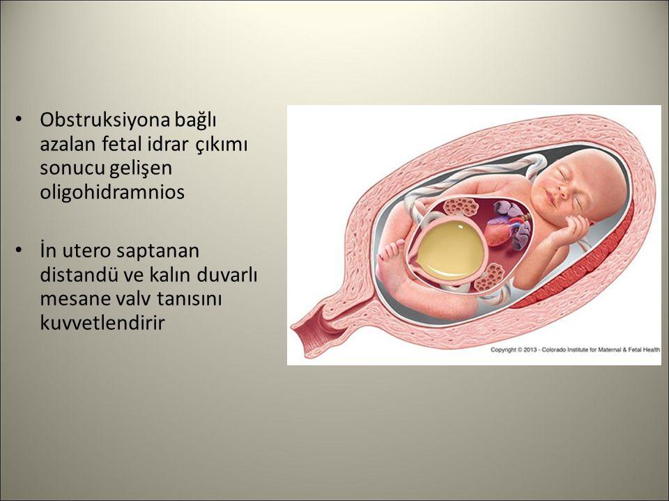 Obstruksiyona bağlı azalan fetal idrar çıkımı sonucu gelişen oligohidramnios İn utero saptanan distandü ve kalın duvarlı mesane valv tanısını kuvvetle