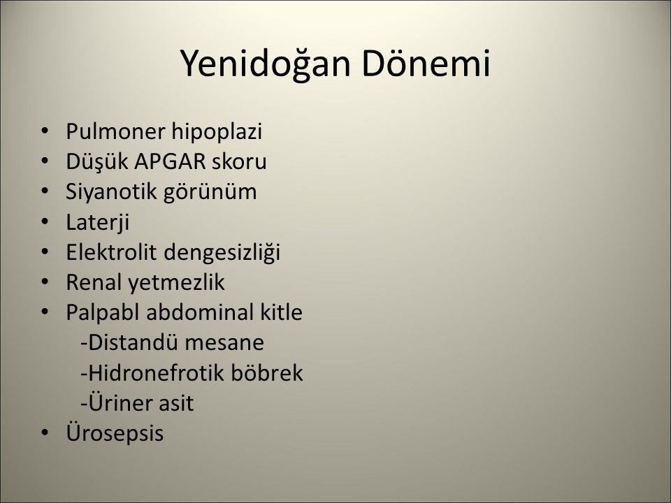Yenidoğan Dönemi Pulmoner hipoplazi Düşük APGAR skoru Siyanotik görünüm Laterji Elektrolit dengesizliği Renal yetmezlik Palpabl abdominal kitle -Dista
