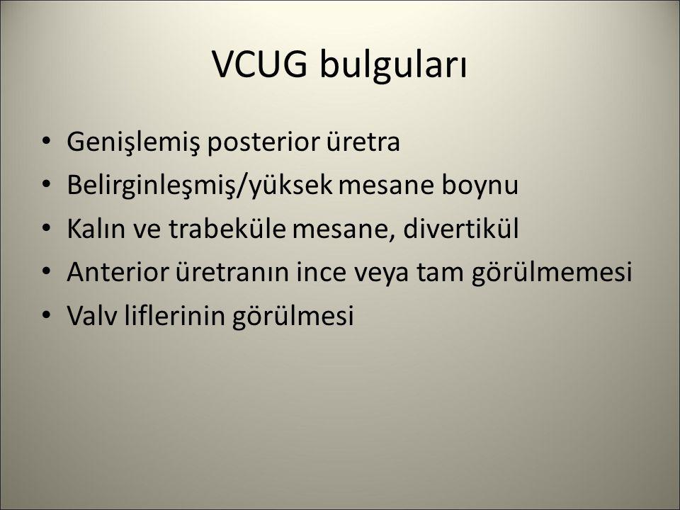 VCUG bulguları Genişlemiş posterior üretra Belirginleşmiş/yüksek mesane boynu Kalın ve trabeküle mesane, divertikül Anterior üretranın ince veya tam g