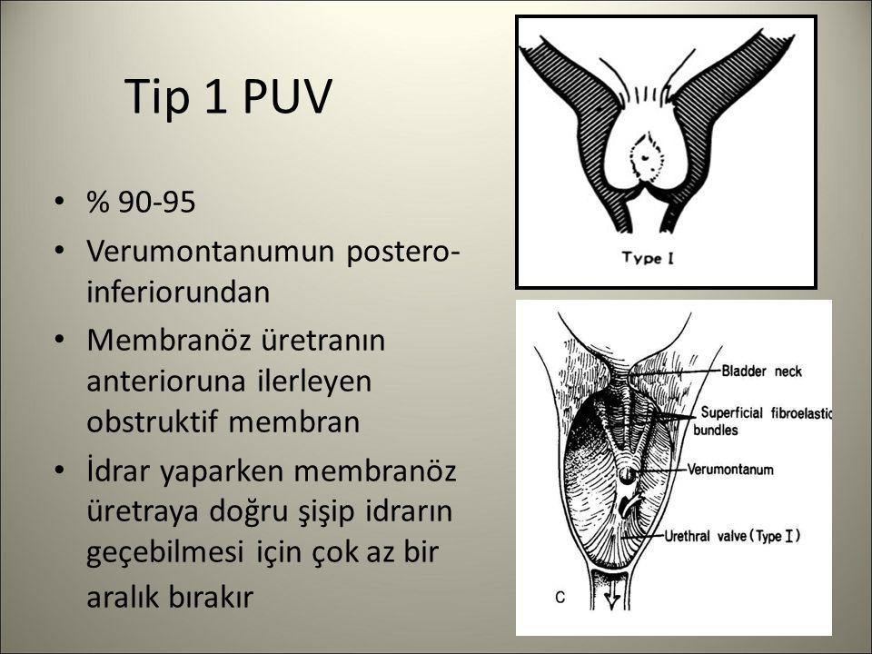 Tip 1 PUV % 90-95 Verumontanumun postero- inferiorundan Membranöz üretranın anterioruna ilerleyen obstruktif membran İdrar yaparken membranöz üretraya