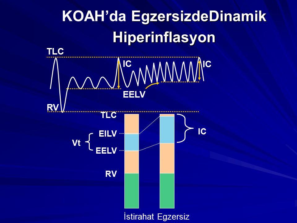 EgzersizdeDinamik Hiperinflasyon KOAH'da EgzersizdeDinamik Hiperinflasyon EELV TLC RV IC İstirahat RV EELV EILV TLC Vt Egzersiz IC