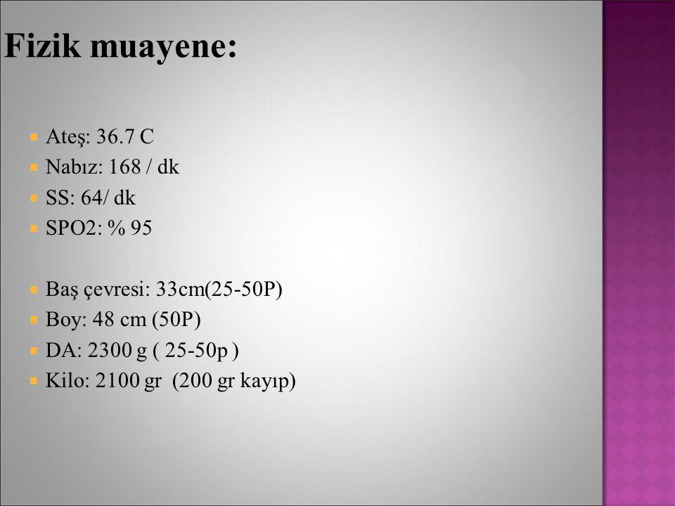 Fizik muayene:  Ateş: 36.7 C  Nabız: 168 / dk  SS: 64/ dk  SPO2: % 95  Baş çevresi: 33cm(25-50P)  Boy: 48 cm (50P)  DA: 2300 g ( 25-50p )  Kil