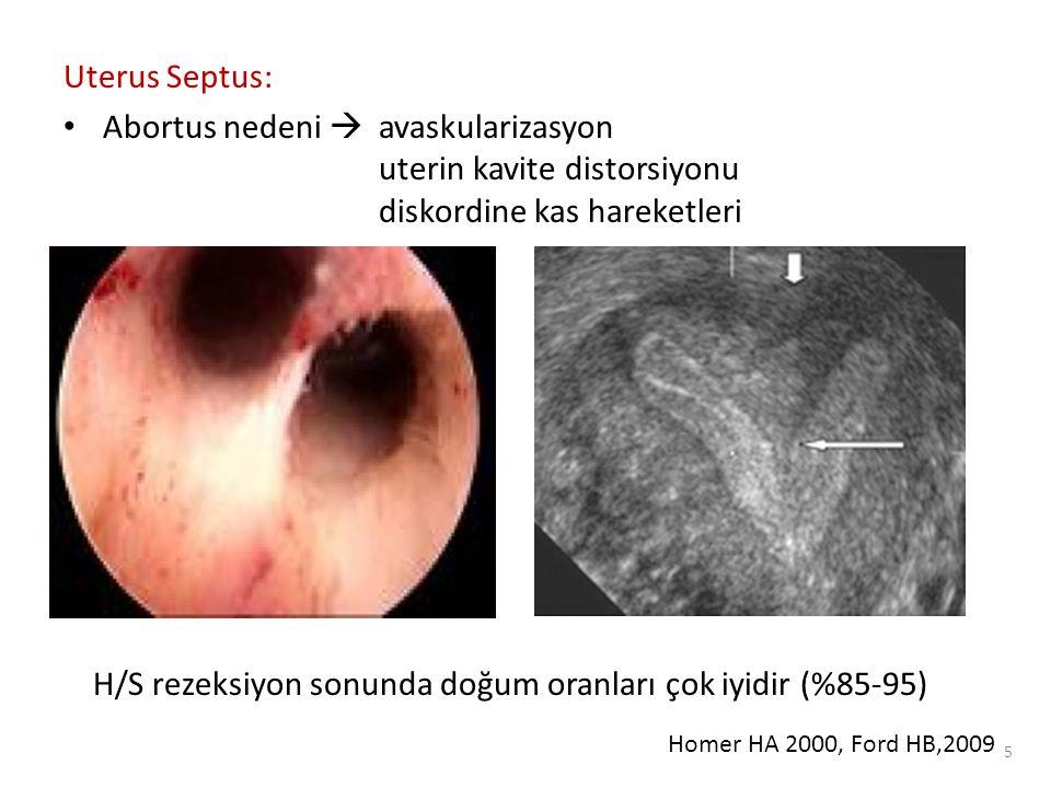 Submüköz myomlar ve polipler: Myomlar uterin kaviteyi deforme ederler ve endometriyum kanlanmasını bozarlar Polipler yabancı cisim reaksiyonu ve fetus için uygunsuz mikro- çevreye neden olurlar 6