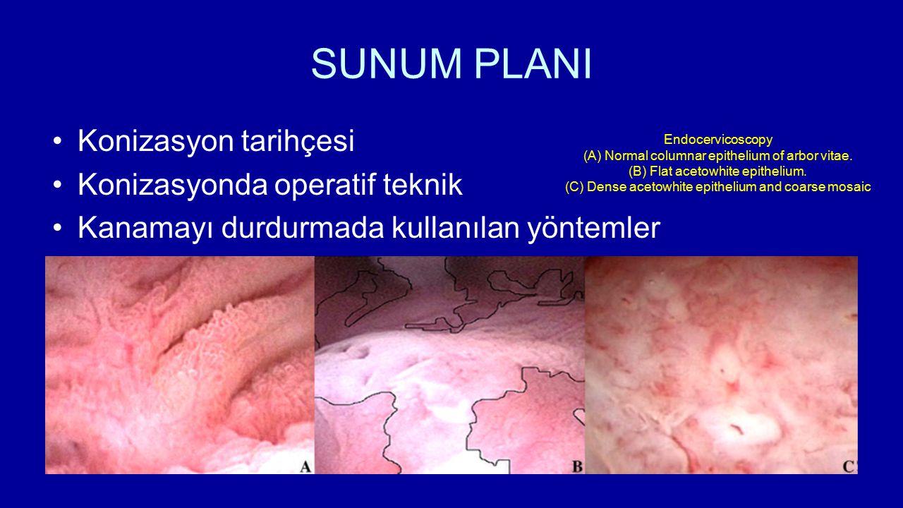 SUNUM PLANI Konizasyon tarihçesi Konizasyonda operatif teknik Kanamayı durdurmada kullanılan yöntemler Endocervicoscopy (A) Normal columnar epithelium