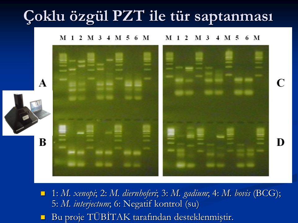 Çoklu özgül PZT ile tür saptanması 1: M.xenopi; 2: M.