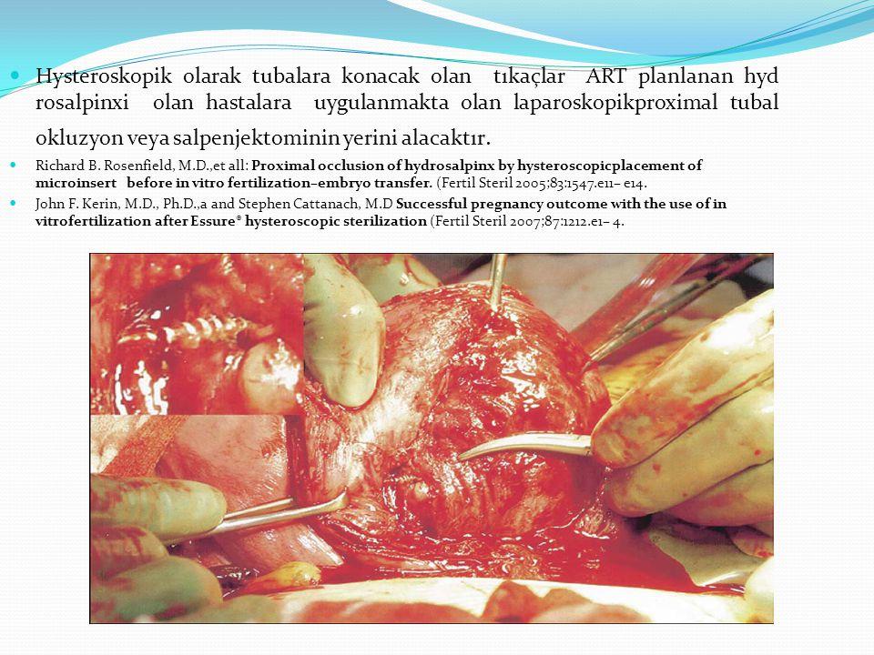 Hysteroskopik olarak tubalara konacak olan tıkaçlar ART planlanan hyd rosalpinxi olan hastalara uygulanmakta olan laparoskopikproximal tubal okluzyon