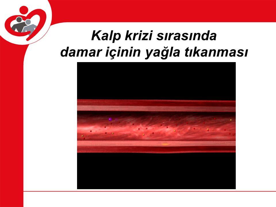 Yüksek kolesterol Kötü kolesterol damarların iç yüzeyine yapışarak plaklar oluşturur.