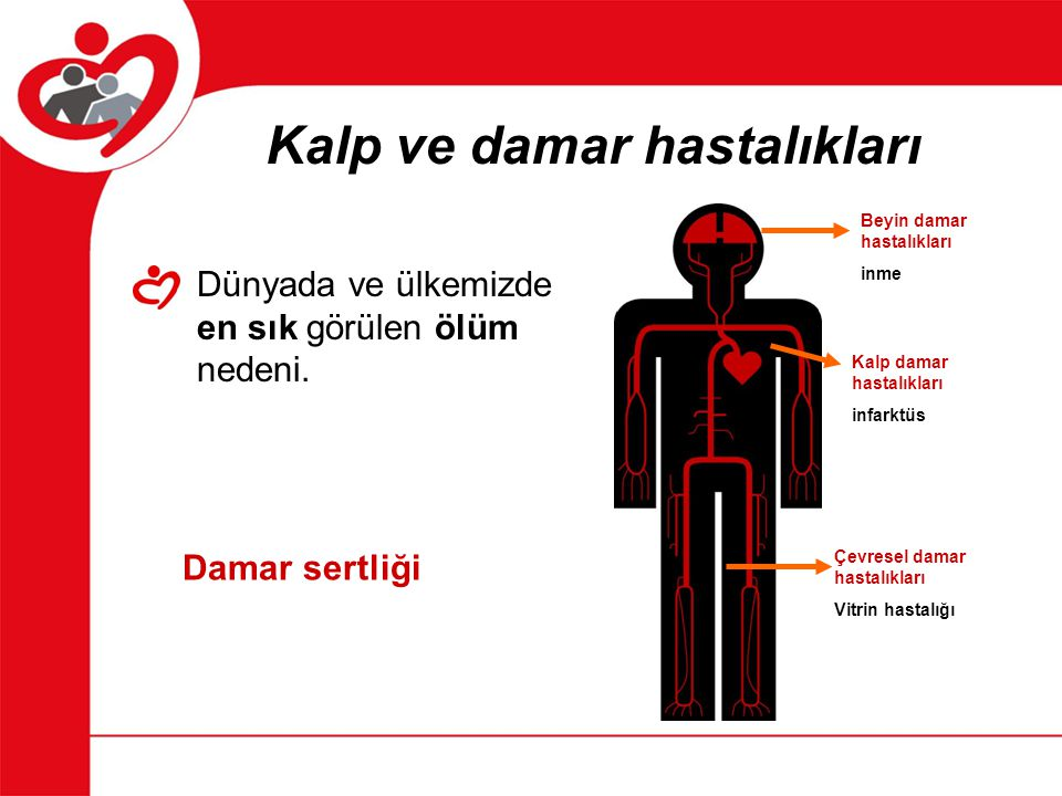 Beyin damar hastalıkları inme Kalp damar hastalıkları infarktüs Çevresel damar hastalıkları Vitrin hastalığı Kalp ve damar hastalıkları Dünyada ve ülk