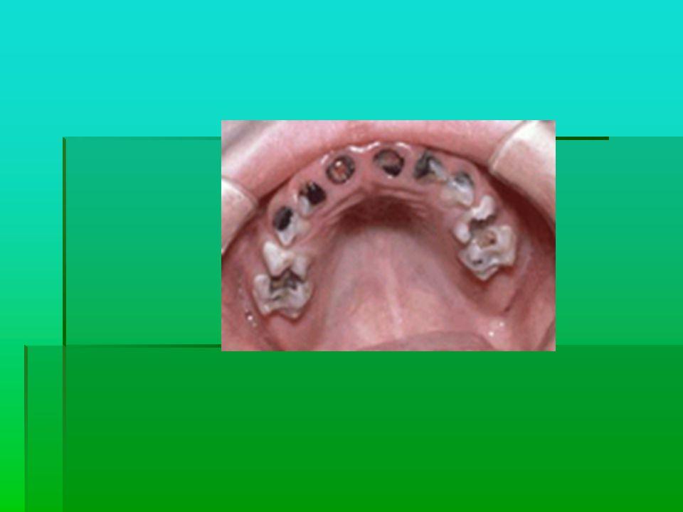 ÇÜRÜK NEDİR? Diş sert dokularının, madde kaybı ile birlikte ilerleyen hastalığına ÇÜRÜK denir. Diş sert dokularının, madde kaybı ile birlikte ilerleye
