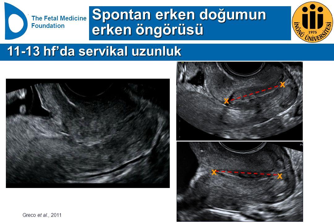 The Fetal Medicine Foundation 11-13 hf'da servikal uzunluk 11-13 hf'da servikal uzunluk Spontan erken doğumun erken öngörüsü Greco et al., 2011 x x x